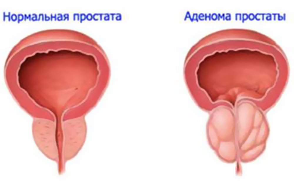 31685693-kakoe-menyu-pri-zabolevanii-adenomy-prostaty