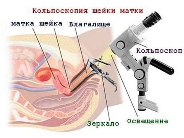 kolposkopiya