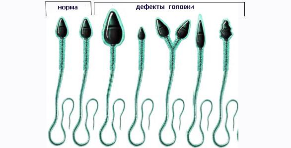 Дефекты головки сперматозоидов
