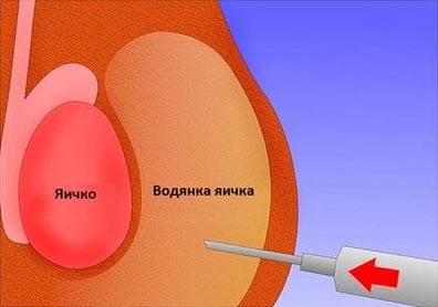 vodyanka-yaichka-lechenie